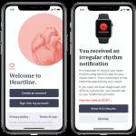 Что не так с Apple Watch