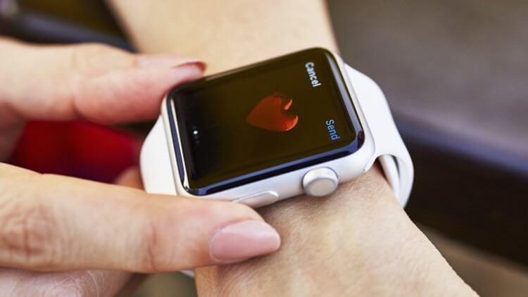 Учёные выяснили, как Apple Watch могут помочь больным гипертонией