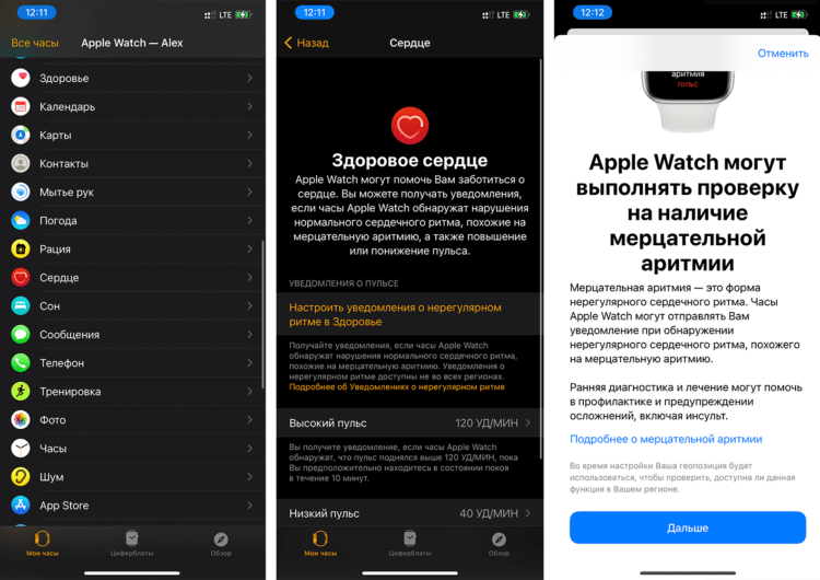 Официально: ЭКГ на Apple Watch в России заработает с выходом iOS 14.2