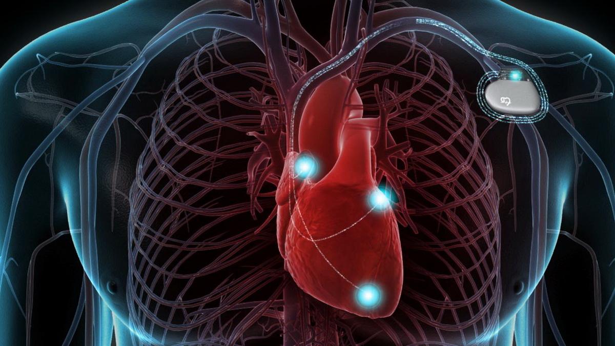 Магниты в iPhone 12 могут быть опасны для имплантируемых медицинских устройств